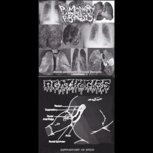 Pulmonary Fibrosis / Agathocles - Broncho-Pneumopathie Chronique Obstructive / Suppository of Speed cover art