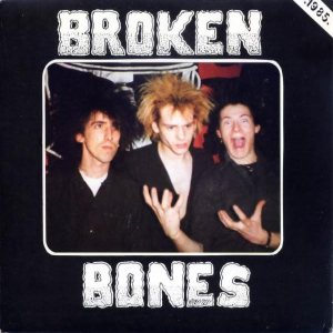 Broken Bones - Seeing Through My Eyes cover art