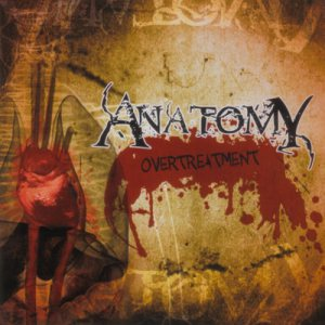 Anatomy - Over Treatment cover art