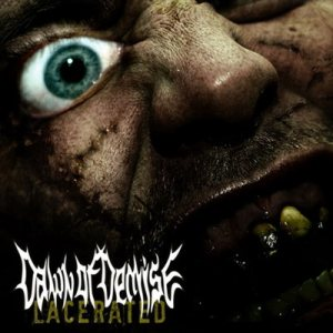 Dawn of Demise - Lacerated cover art
