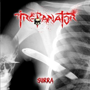 Trepanator - Surra cover art