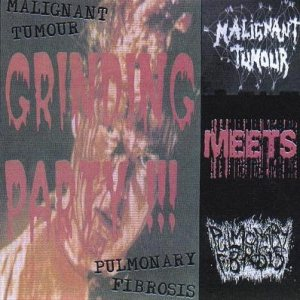 Malignant Tumour / Pulmonary Fibrosis - Grinding Party !!! cover art