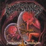 Malignancy - Intrauterine Cannibalism