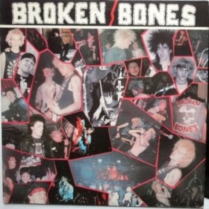 Broken Bones - Never Say Die cover art
